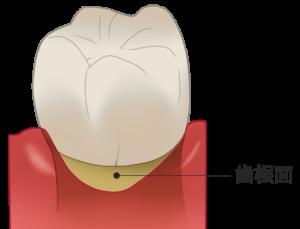 露出した歯根面